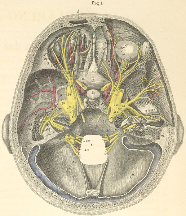 从病理解剖观察上可见:颈动脉破裂孔处为应力中心,极易受损伤。引起耳鼻大出血的颅底骨折,以蝶骨、岩骨处与蝶窦、中耳邻近为主,填塞感染机会不多。因此两种骨折使颈动脉出血易进入腔室,引起耳鼻大出血。而蛛网膜下腔在此处欲与这些腔室沟通,路途远,骨壁厚或有较多软组织相隔而少见。即使沟通,也极易愈合。颅底骨折位于额窦和筛板,则无大的血管,大出血机会不多。但骨壁薄,硬膜薄,骨与硬膜粘着紧,则极易使蛛网膜下腔与腔室沟通且愈合相对困难,是引起顽固性脑脊液漏乃至颅内感染的常见原因。处理上当然以传统不堵原则为合理。